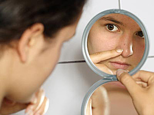 Acne – how to get rid of it